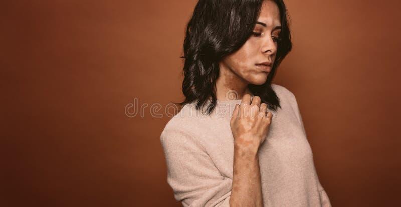 Upprörd ung kvinna för Vitiligo arkivfoto