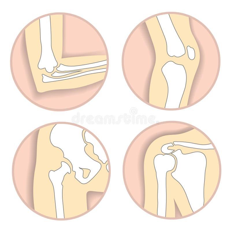 Uppsättning av människaskarvar, armbåge, knä, höftled