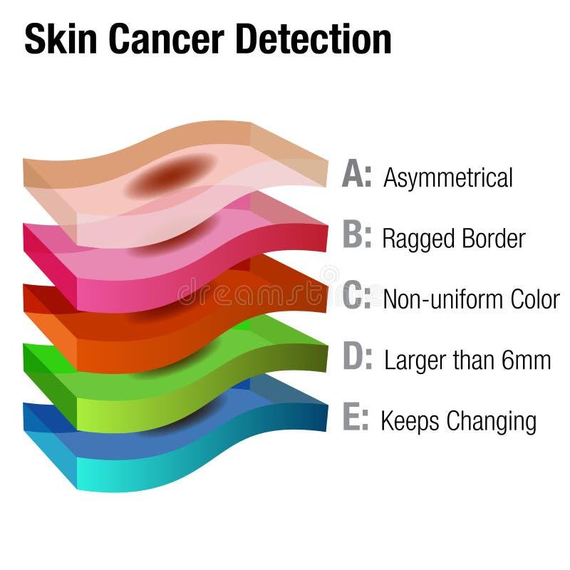 Upptäckt för hudcancer stock illustrationer