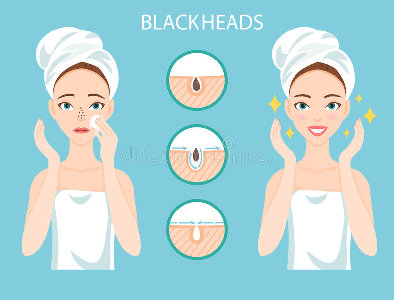 Upset woman with female facial skin problem needs to care about: infographic of clogged nose pores and blackheads. Stages of tr stock photo