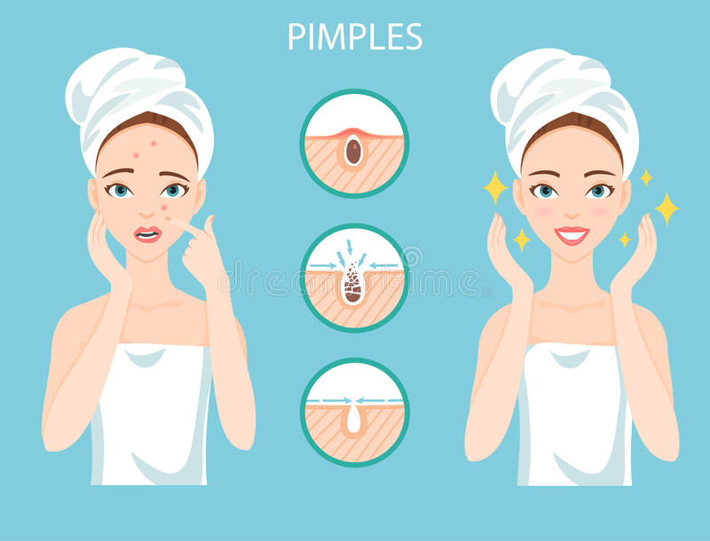 Upset woman with female facial skin problem needs to care about: infographic of pimples and stages of their treatment and clear stock images
