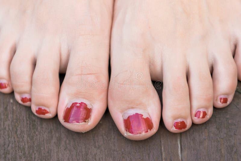 Terrible nail polish stock photos