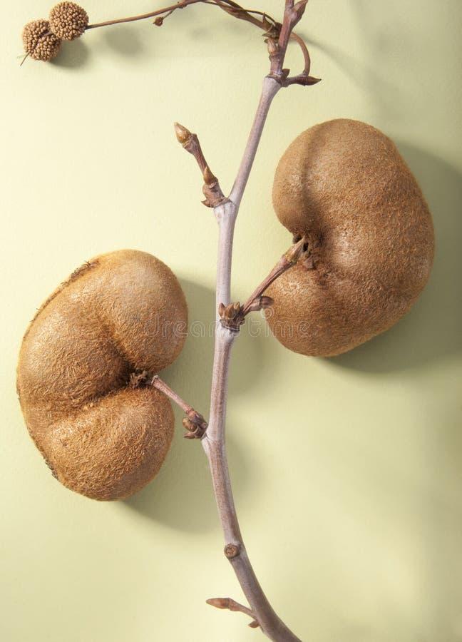 Urin- genitalt system och njurebegrepp royaltyfri fotografi