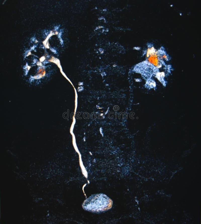 urin- system CT arkivfoto