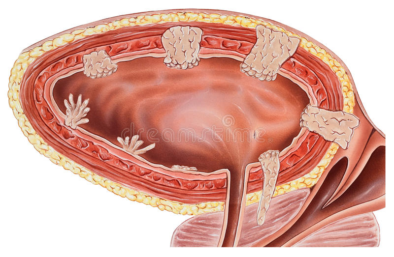 Urinary Bladder & Wall - Cancer royalty free stock photography
