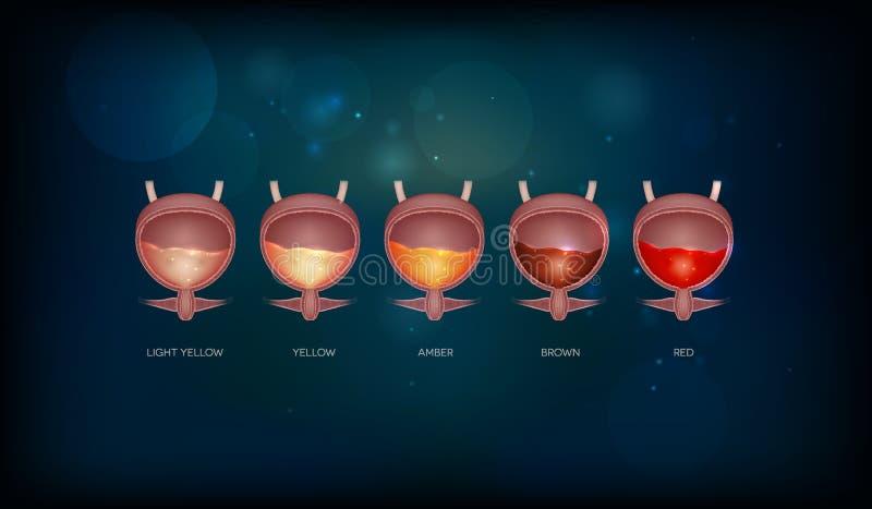 Urinary pęcherzowi uryna kolory ilustracja wektor
