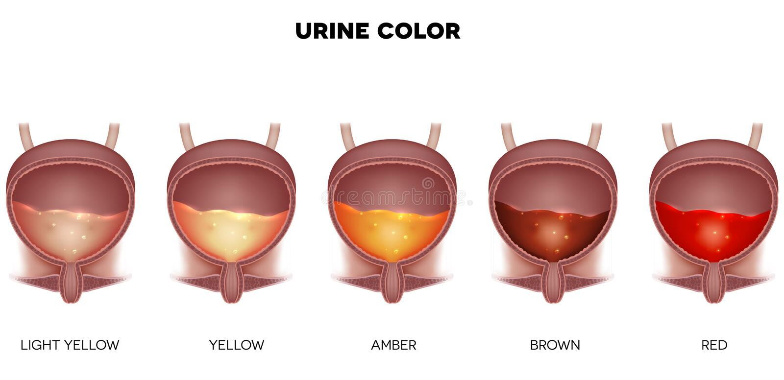 Urine Color Stock Vector Illustration Of Human Anatomical 100649925