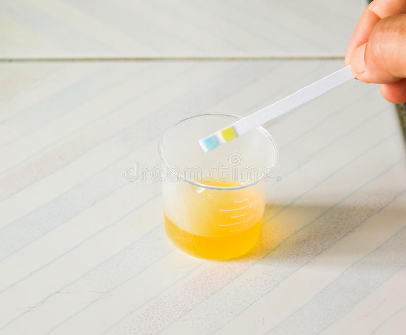 Urine examination. Urine examination for primary screening DM and HT in pregnant stock images