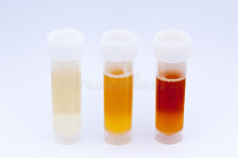 Three differing colours of collected urine samples royalty free stock photos