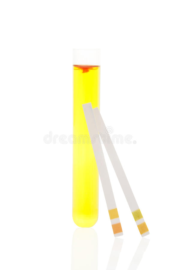 Urine in test tube and pH test strips. royalty free stock photography