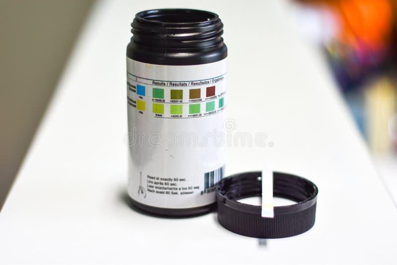 Urinestrook voor urineonderzoek royalty-vrije stock foto's