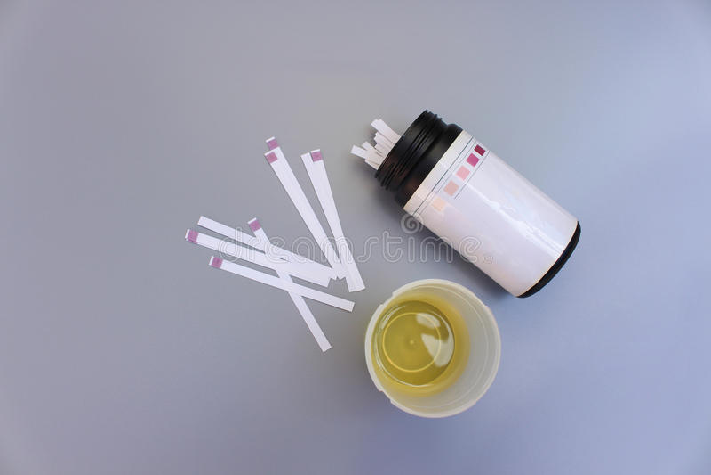 Urinteststreifen lizenzfreies stockfoto