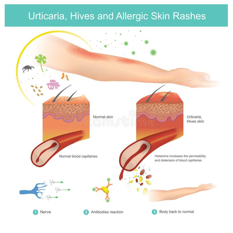 Urticaria, bikupor och allergiska hudRashes illustration vektor illustrationer