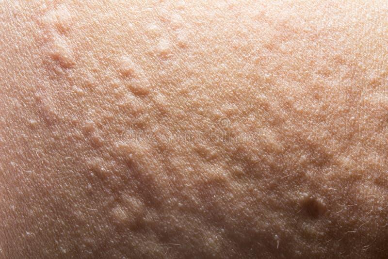 Urticaria- oder Allergiehautausschlag stockfotografie