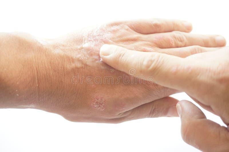 Eczema on finger stock photo. Image of painful, rash ...