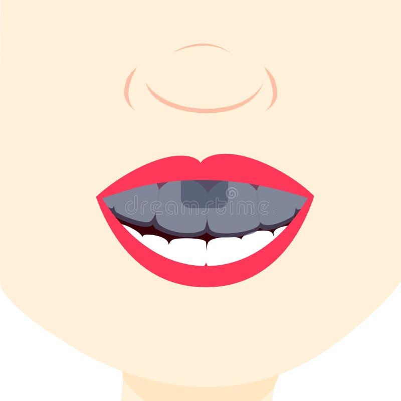 Using dental tray royalty free illustration