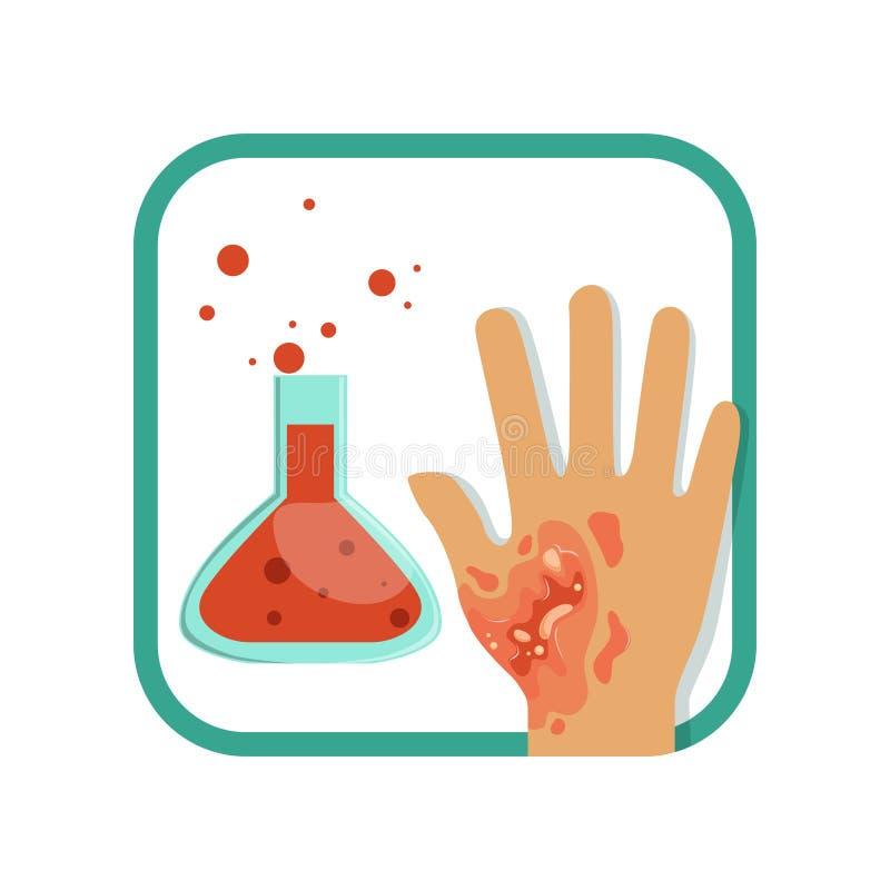 Ustione chimica di di terzo grado Mano con l'epidermide esterna nociva e lo strato interno del derma di pelle Lesione severa pian illustrazione di stock