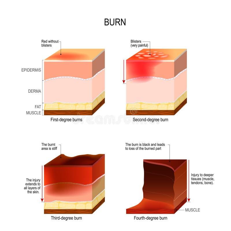 Ustione della pelle quattro gradi di ustioni illustrazione di stock