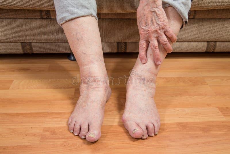 Uszkadzający palec u nogi i marszcząca ręka fotografia royalty free