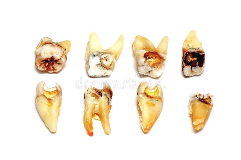 Utdragna tänder på en vit bakgrund royaltyfri bild