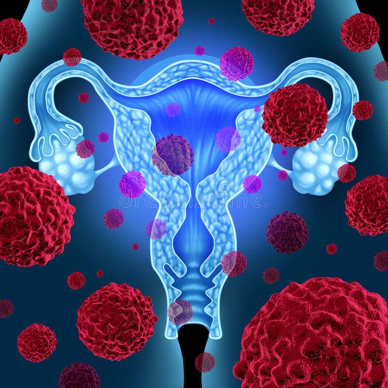 Uterus Cancer. Uterus or uterine cancer medical concept as cancerous cells spreading in a female body attacking the reproductive system anatomy including ovaries stock illustration