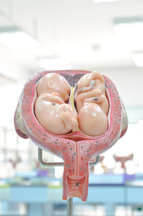 Uterus with twin fetus. In the fifth month royalty free stock image