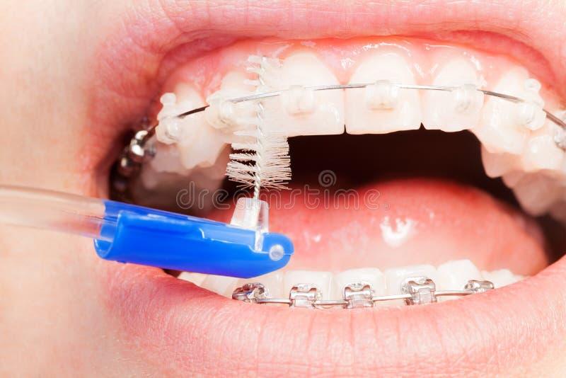 Utilisant une brosse interdentaire pour les accolades orthodontiques photos stock