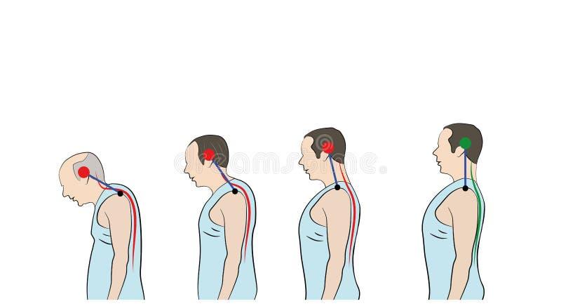 Utveckling av en luta sig ner slagställning med ålder som visar ökande krökning av ryggen royaltyfri illustrationer