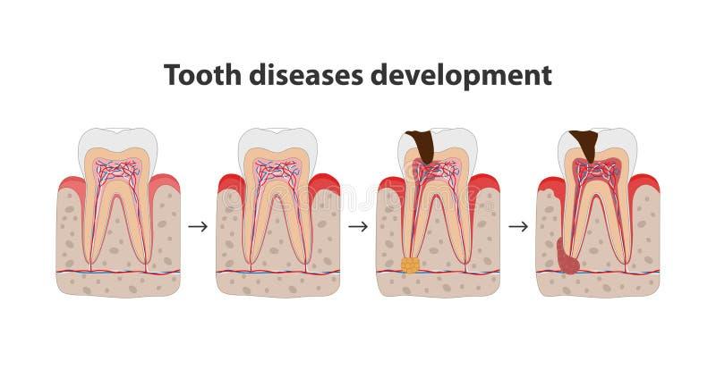 Utveckling av illustrationen för affisch för tandsjukdom den medicinska i plan design Tänder i gummisymboler som isoleras på vit  stock illustrationer