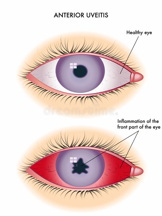 Uveitis. Medical illustration of the symptoms of uveitis stock illustration