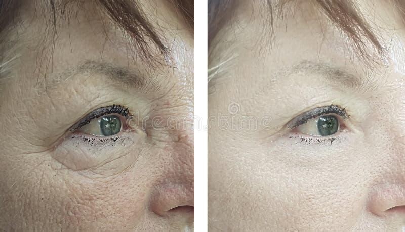Vända mot vuxna människan en äldre behandling för kvinnavitaliseringborttagning före och efter royaltyfri bild