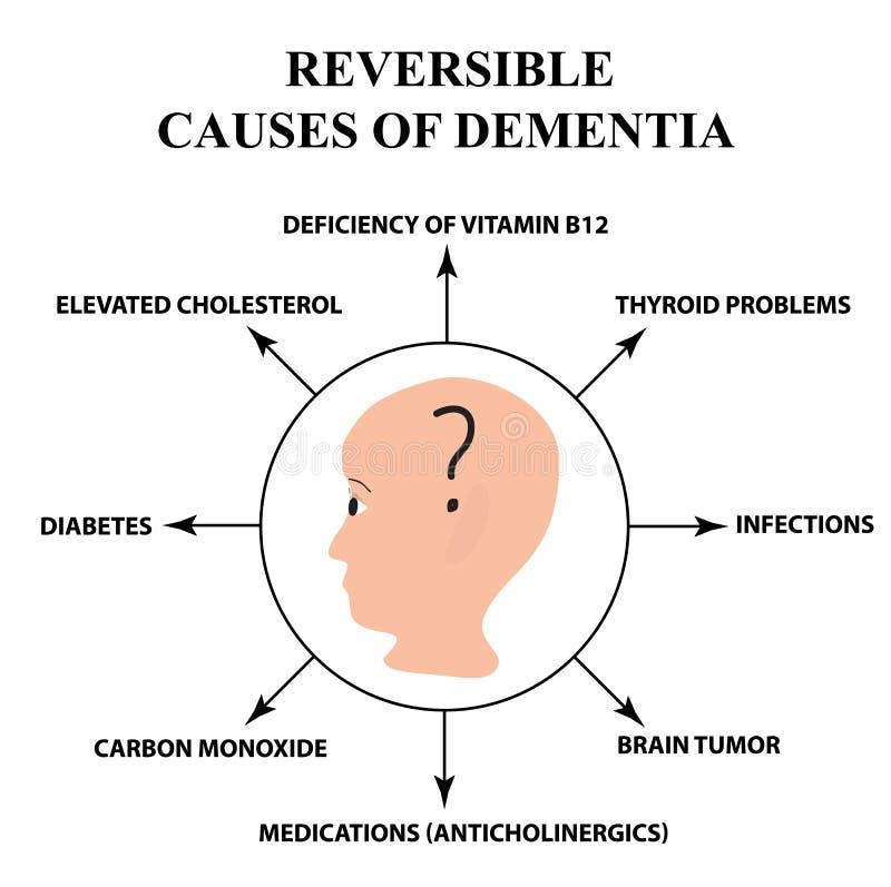 Vändbara orsaker av senil demens Sjukdom för Alzheimer ` s Infographics Vektorillustration på isolerad bakgrund stock illustrationer