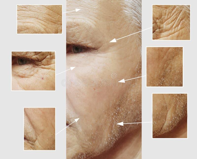 Vänder mot tålmodiga pannaskrynklor för den ansikts- äldre mannen som hydratiserar effektmedicinterapi, före och efter tillvägagå fotografering för bildbyråer
