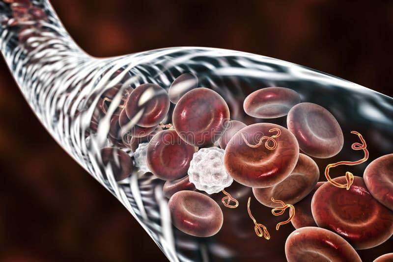Vírus de Ebola no sangue de um paciente com febre hemorrágica de Ebola ilustração royalty free