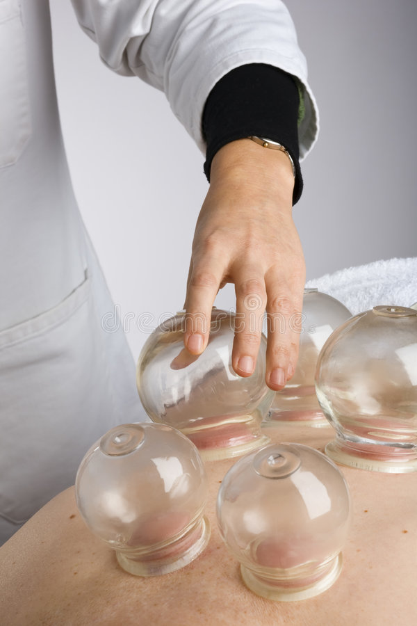 Vacuum cupping royalty free stock image