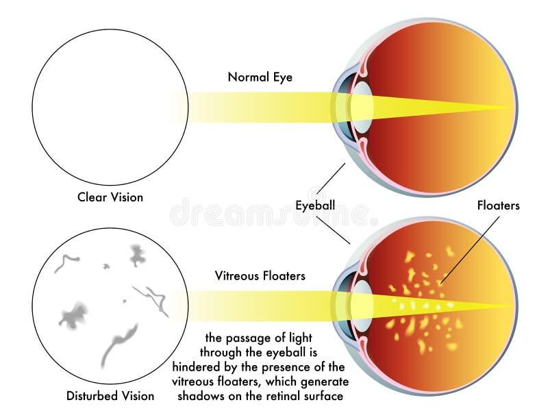Vagabundos vítreos ilustração do vetor