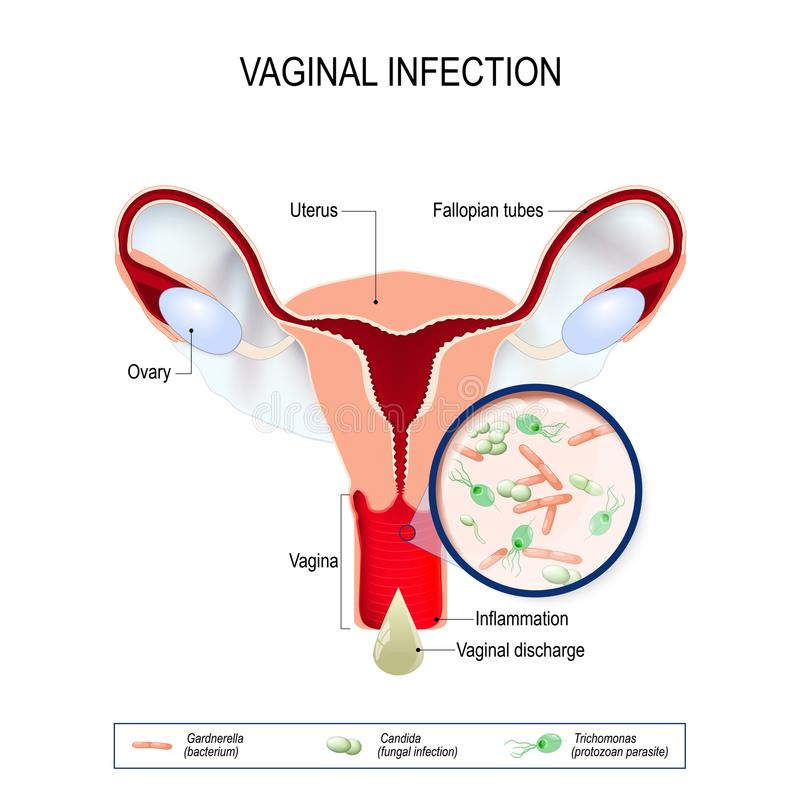 Vaginal infection and causative agents of vulvovaginitis. vector illustration