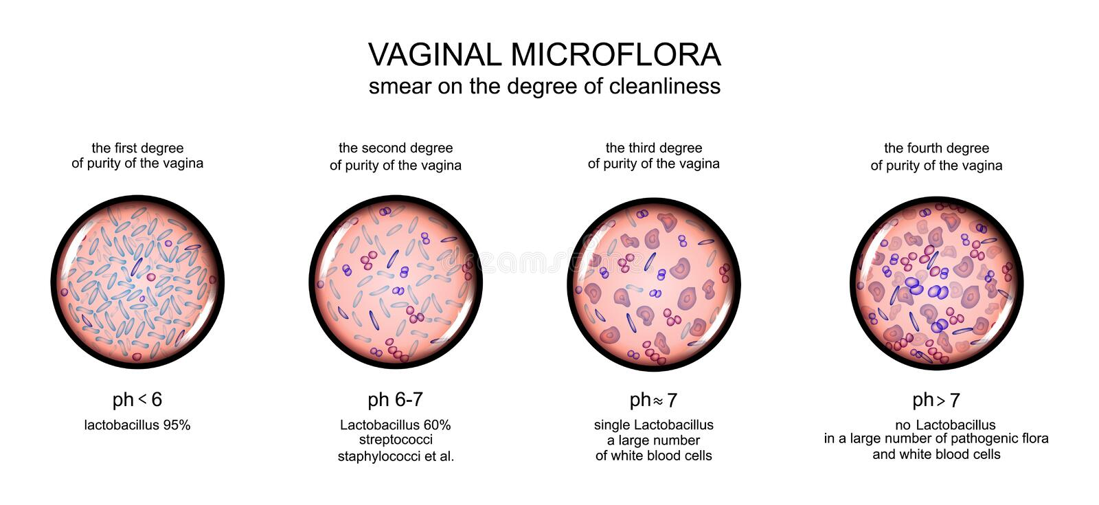 Vaginal microflora grad av renhet av slidan royaltyfri illustrationer
