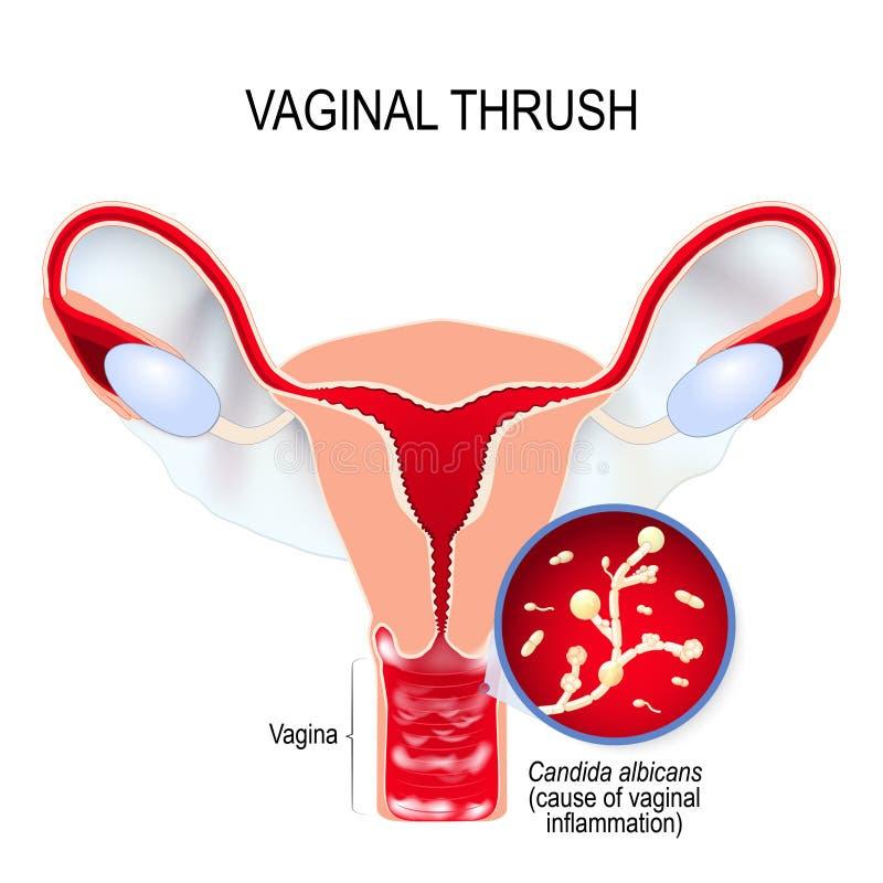 Vaginale gistbesmetting en Candida albicans royalty-vrije illustratie