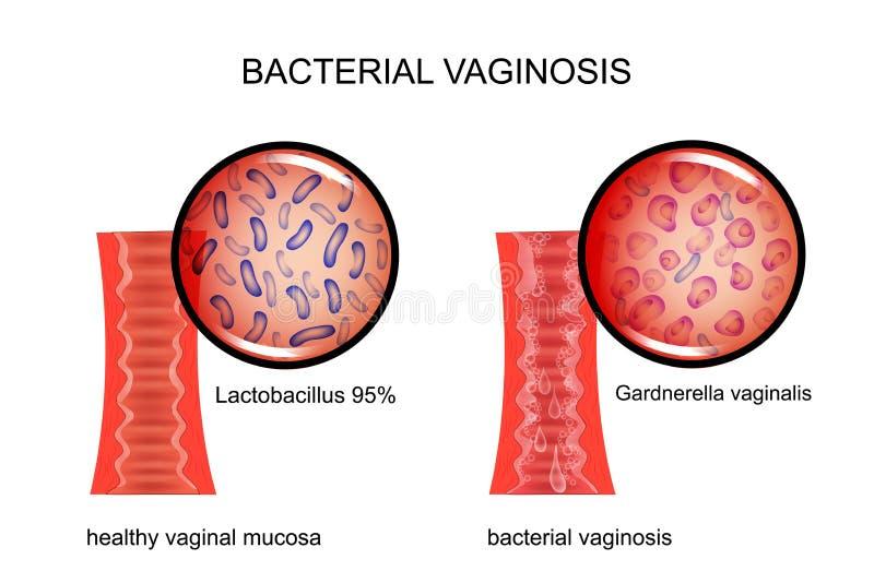 Vaginosis bacteriano la vagina y el agente causativo libre illustration