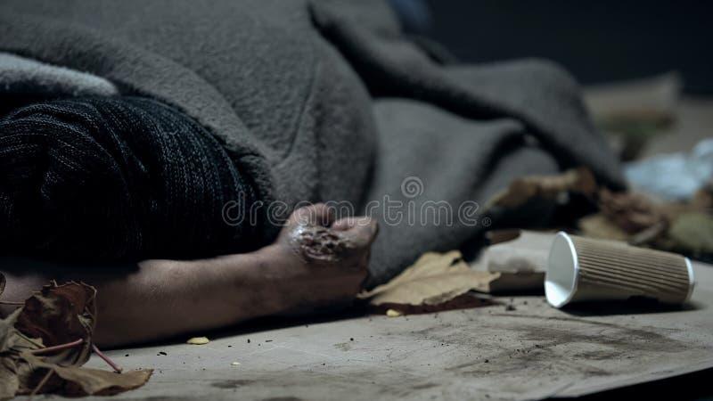 Vago con las quemaduras de la piel cubiertas por la manta que duerme en la calle en el otoño, frío fotos de archivo libres de regalías