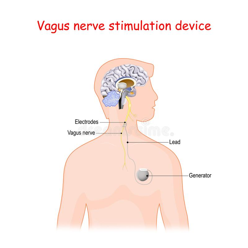 Vagus nerve stimulation device. Vector diagram for medical use vector illustration