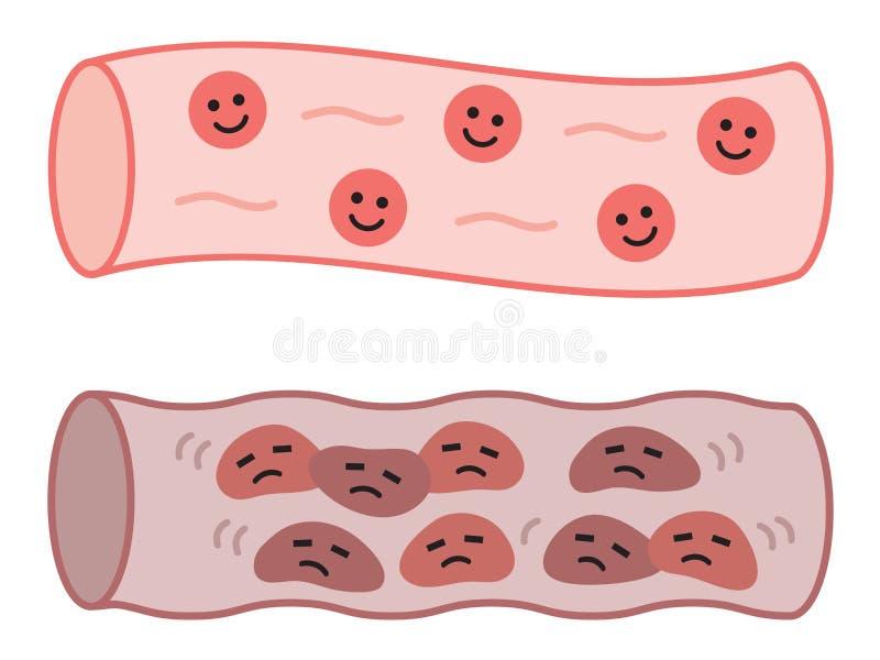 Vaisseau sanguin sain et artère obstruée en caractères mignons Concept de soins de santé illustration de vecteur