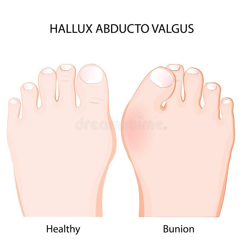 Valgus del abducto de Hallux junta sana y juanete stock de ilustración