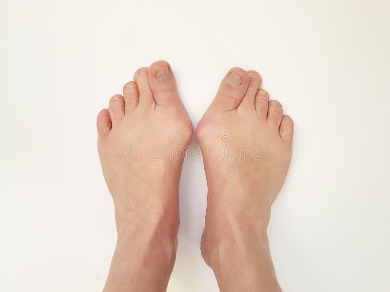 Valgus Hallux, πόδια, άσπρες, πονώντας ενώσεις στοκ εικόνες με δικαίωμα ελεύθερης χρήσης