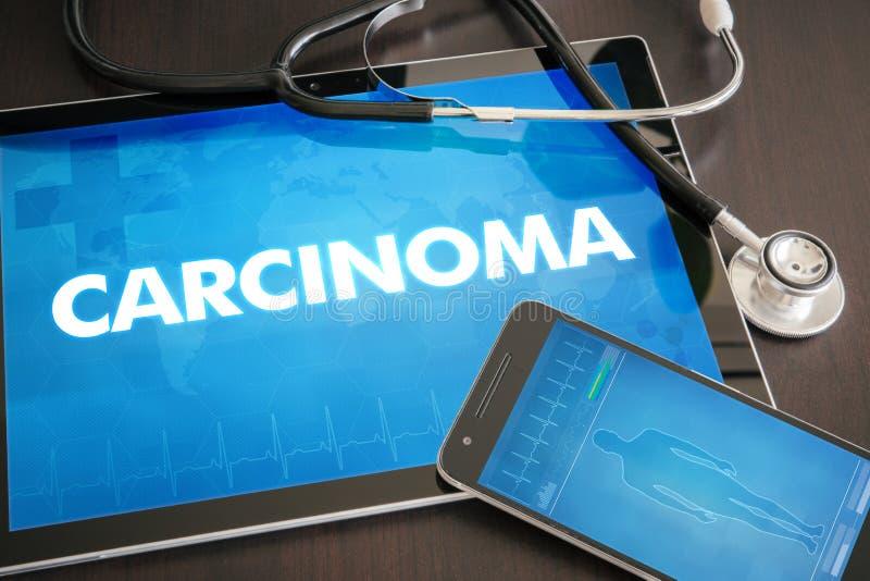 Van de carcinoom (verwante kanker) diagnose het medische concept op tablet s stock illustratie