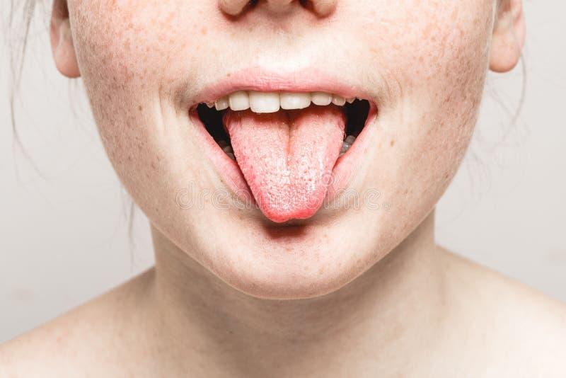 Van de de sproetenvrouw van de tong open mond Jong mooi het gezichtsportret met gezonde huid stock fotografie