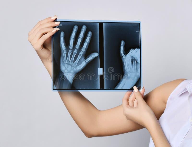 Van de greephanden van de artsenvrouw de R?ntgenstraalonderzoek op grijs stock fotografie