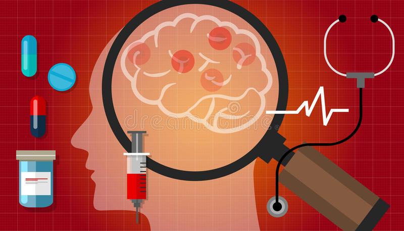 Van de hersenenkanker van Alzheimer Parkinson van de het medicijnanatomie ziekte van de de gezondheidszorgbehandeling de medische stock illustratie