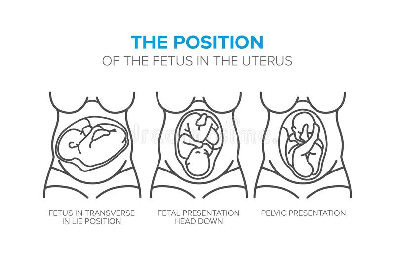 The position of the fetus in the womb. Variants of positions fetus in the womb vector illustration